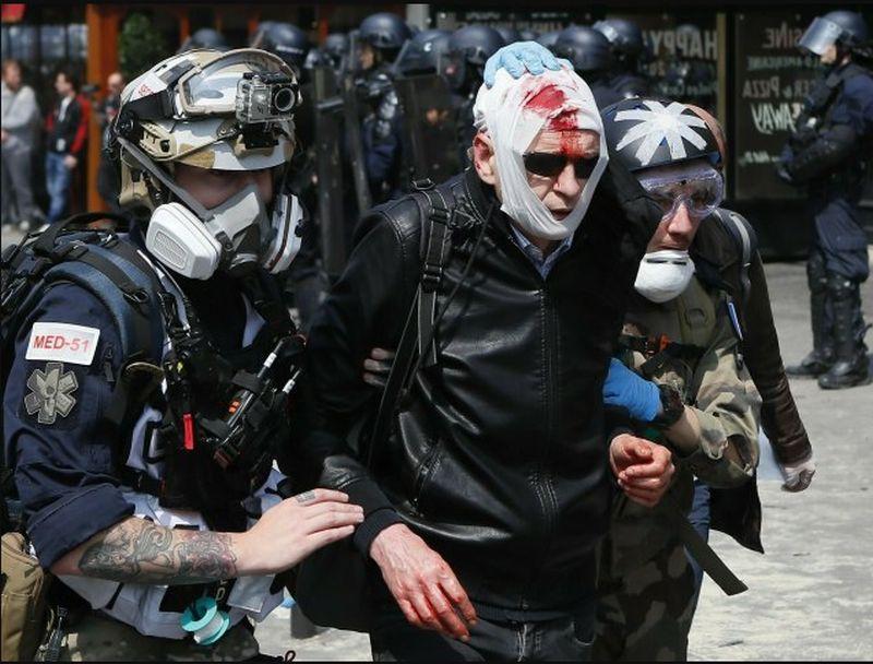Pariz, protest, sukobi, povrijedjeni